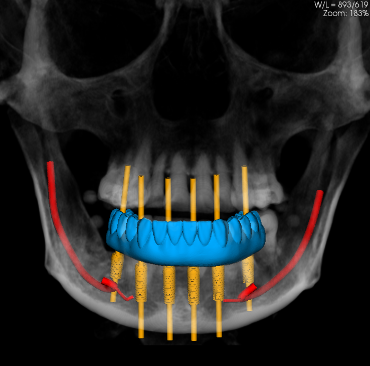 All On 4 Dental Implant Technique