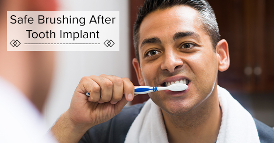 Brushing After Tooth Implant
