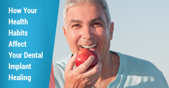 Dental Implant Healing